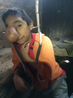 Daniel, one of the boys in Chicaman, Guatemala, had a growth protruded the size of a plum