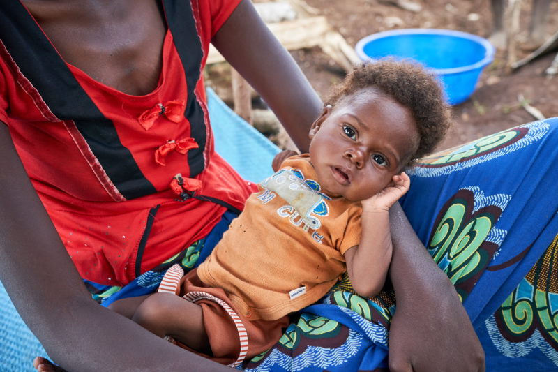 Christive, a refugee baby, suffering from malnutrition, malaria, pneumonia, and tuberculosis, being held by his mother